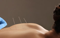Dry needling therapie